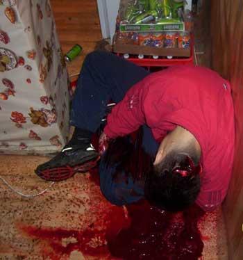 Mladý Srb Dimitrij zavražděný Albánci